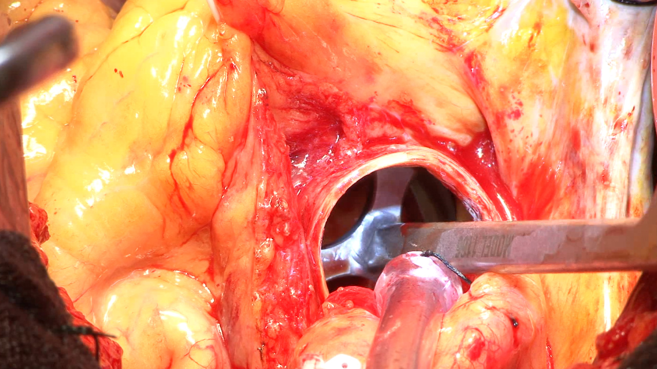 Heart-Procedure-Medical-Video